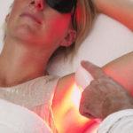 IPL duurzaam ontharen Skinclinic Nijmegen - Resi Peters