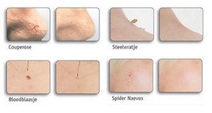 rode adertjes gezicht verwijderen Skinclinic Nijmegen